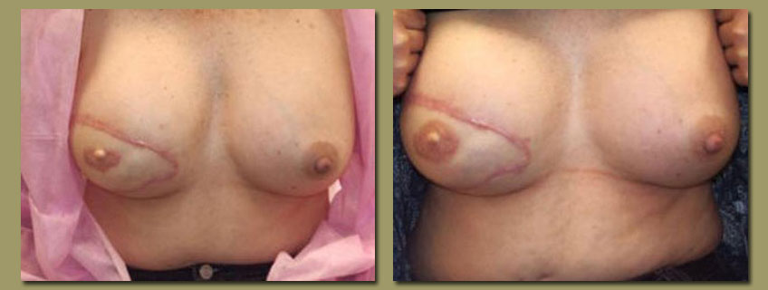 other breast surgery or who may have irregular or fading areolas